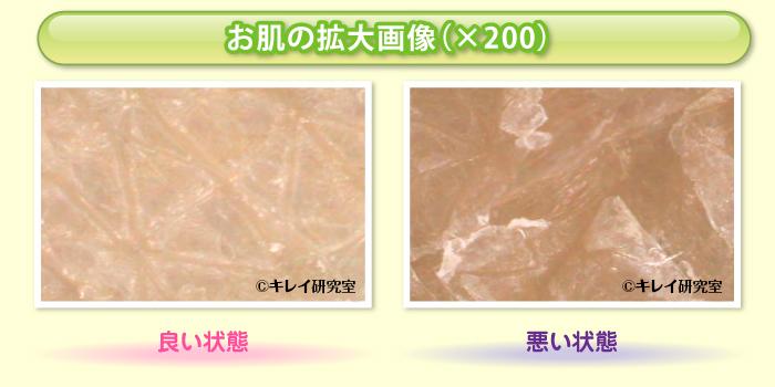 お肌の拡大画像(×200)
