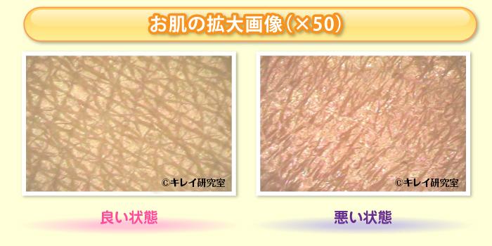 お肌の拡大画像(×50)